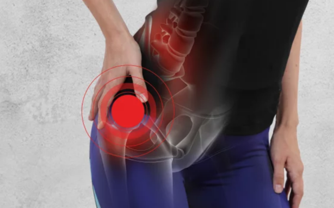 Understanding Your Hip Health – Part 1: Hip Hinge